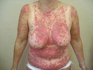 Sole di mare di dermatite di atopic