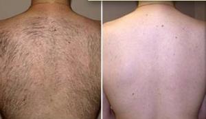 Epilazione laser schiena