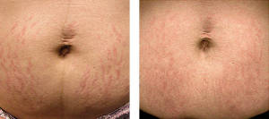 fraxel_stretch_marks_scars-before_after-1