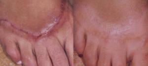 scar-resurfacing-1