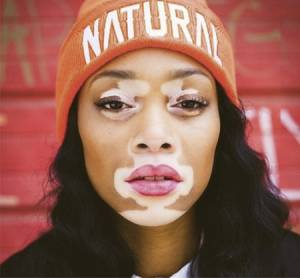 top-model-vitiligo