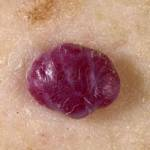 diagnosis_hemangioma