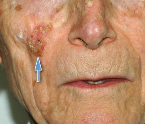 Carcinoma spinocellulare cutaneo