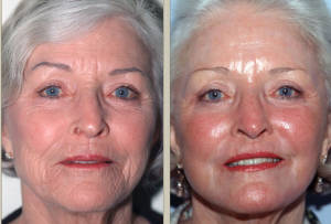 Ringiovanimento viso: prima e dopo